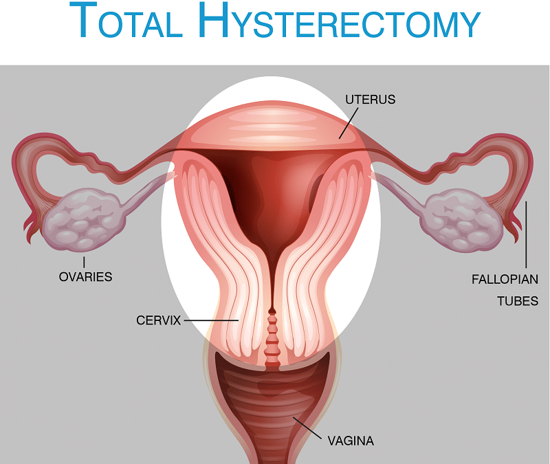 Total Abdominal Hysterectomy: Procedure Steps, Complications, Recovery