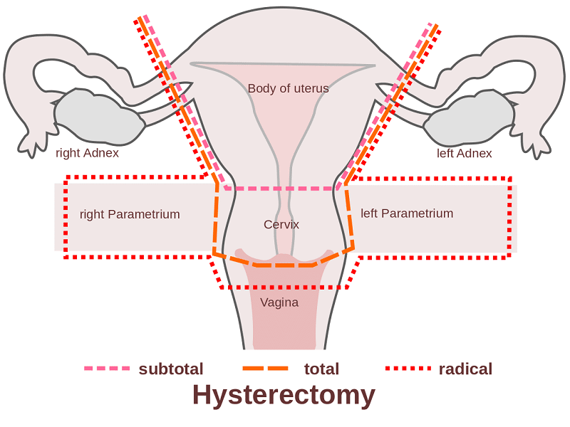 The Side Effects of Hysterectomy and Alternatives to the Procedure