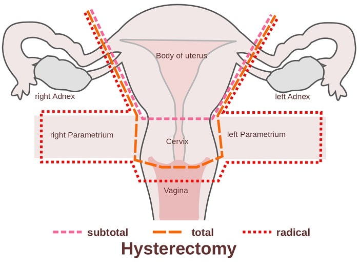 hysterectomy graphic