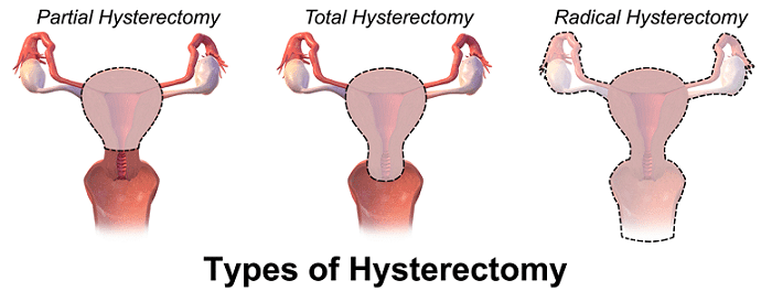 the main types of hysterectomy surgery